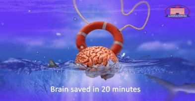 Brain rescued in 20 minutes - perfusion computed tomography (PCT), the leader in the diagnosis of stroke