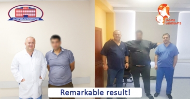 Stomach operation for weight loss – Man who lost 100 kg in 11 months with sleeve-gastrectomy