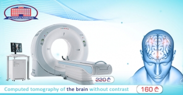 Get Rid of Headaches – We offer Computed Tomography of the Brain and Neurologist Consultation