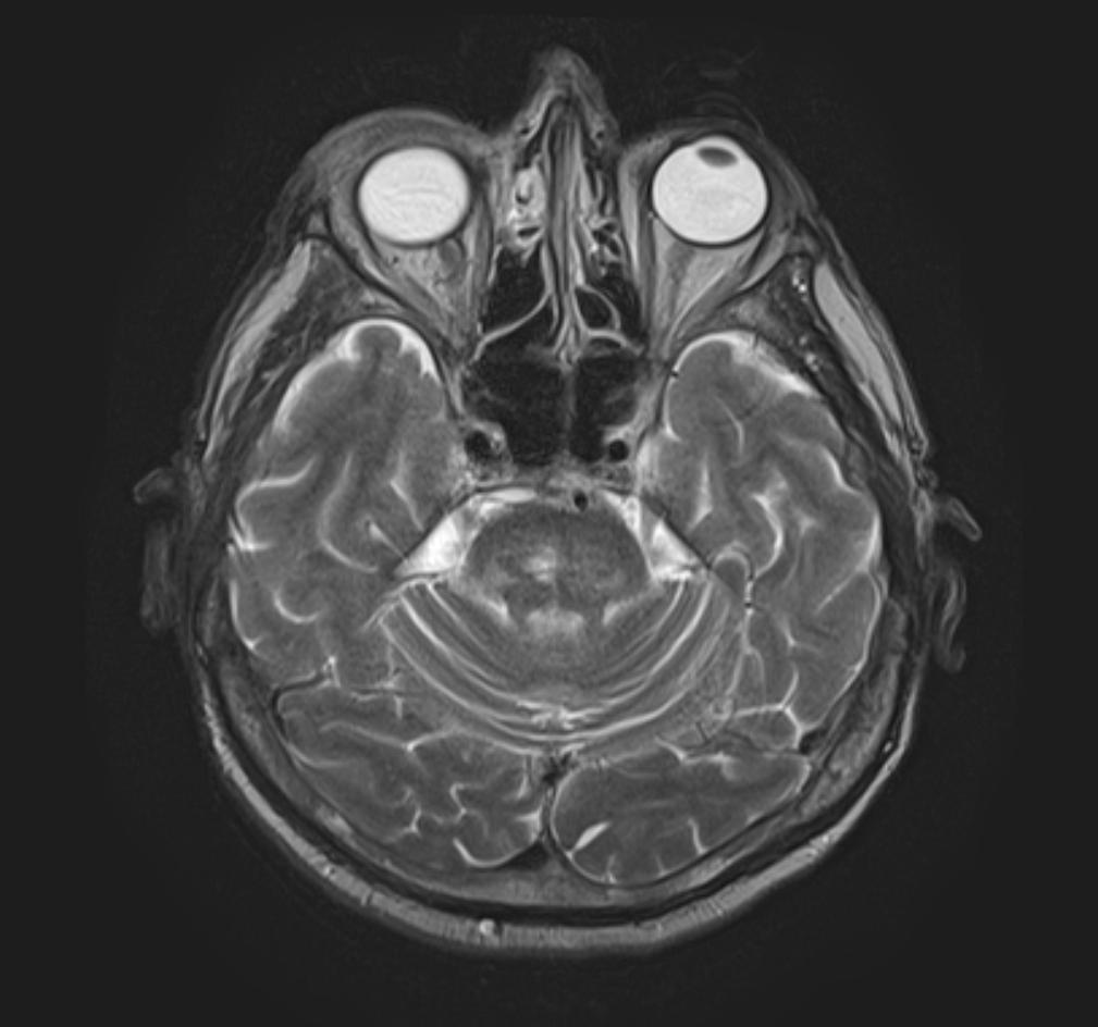 nazofagialuri-karcinomis-gaqroba