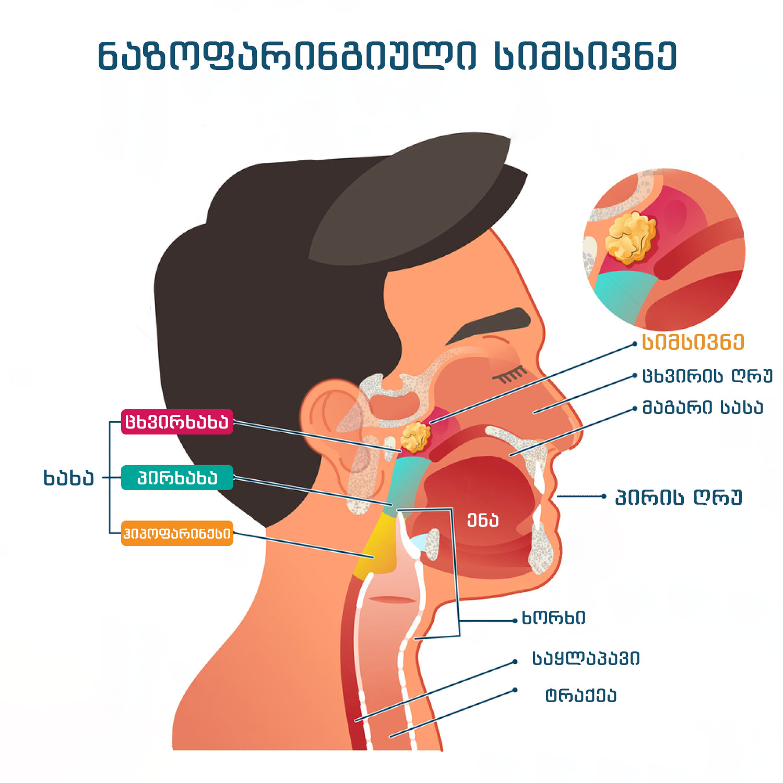 nazofaringiuli-simsivne