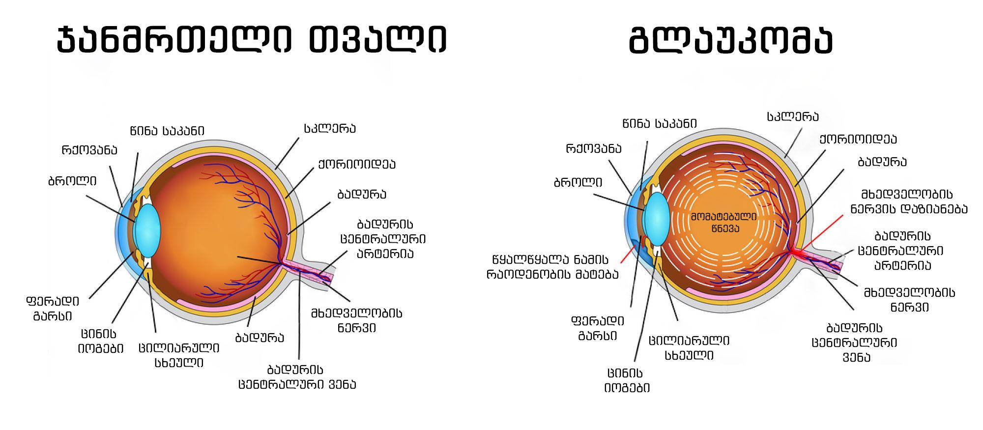 glaukoma-janmrteli-tvali