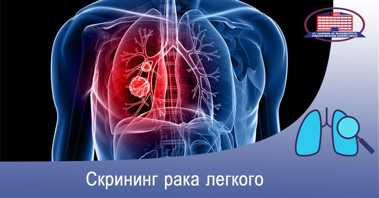 Скрининг рака легкого - предлагаем компьютерную томографию легких