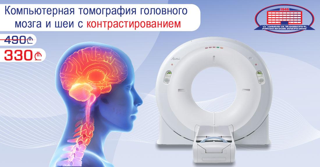 Компьютерная томография головного мозга и шеи с контрастированием