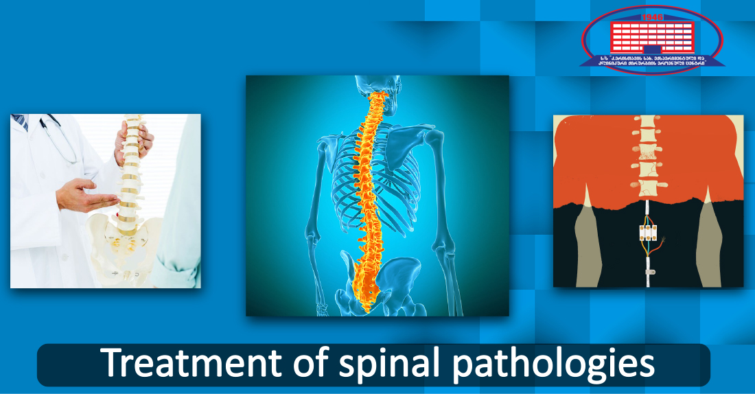 Treatment of any spinal pathology with the endoscopic method or without the operation!