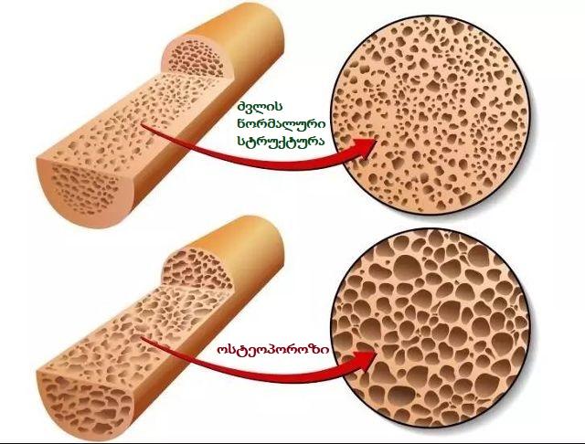 osteoporozi