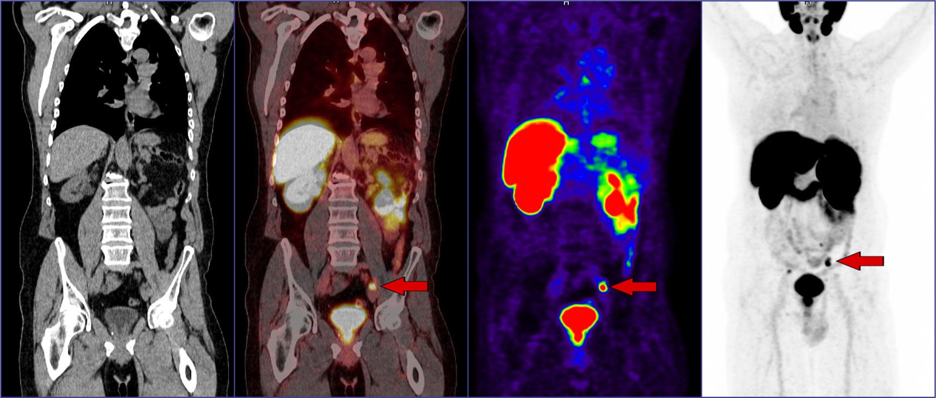 peti-pozitronuli-emisiuri-tomografia