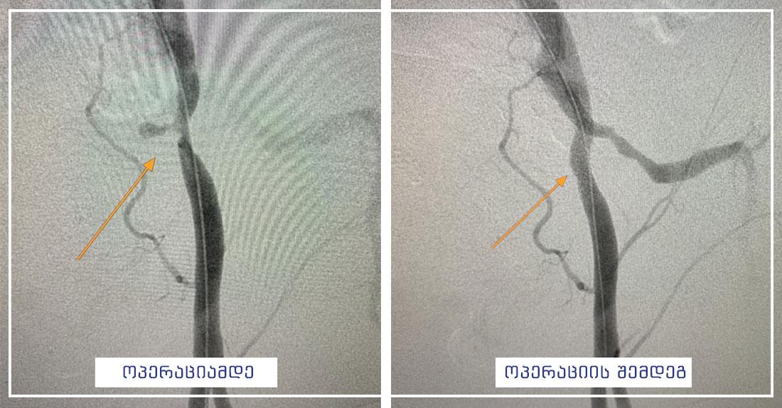 sisxldzargvta-qirurgia